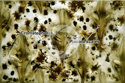 Scyliorhinus sp. Scyllium sp. Dogfish. Placoid scale. 125X