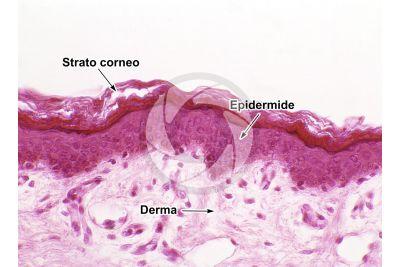 Uomo. Cute e epidermide. Sezione verticale. 200X