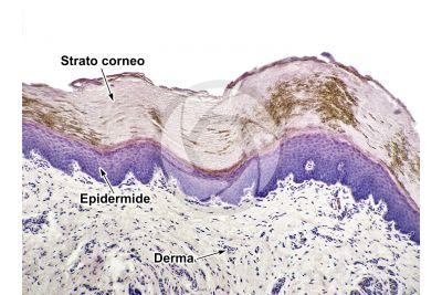Uomo. Cute e epidermide. Sezione verticale. 125X