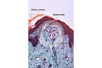 Uomo. Cute e epidermide. Sezione verticale. 100X