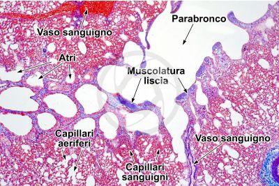 Gallus gallus domesticus. Pollo. Polmone parabronchiale. Sezione trasversale. 32X