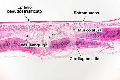 Uomo. Trachea. Sezione verticale. 32X