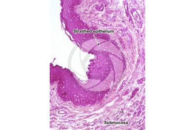 Dog. Larynx. Vertical section. 125X