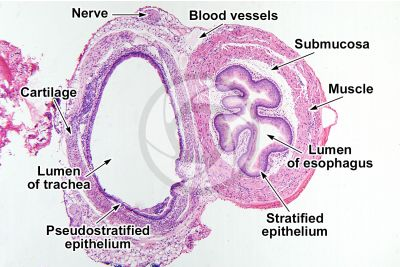 Rat. Esophagus and trachea. Transverse section. 64X