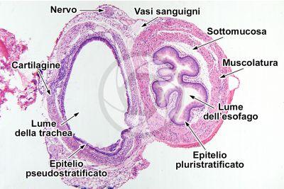 Ratto. Esofago e trachea. Sezione trasversale. 64X