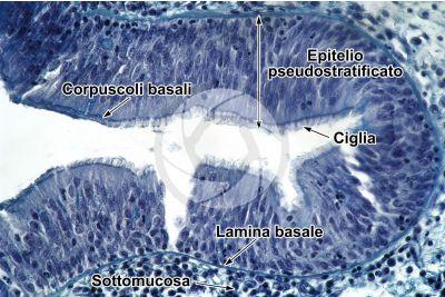 Coniglio. Trachea. Sezione trasversale. 250X