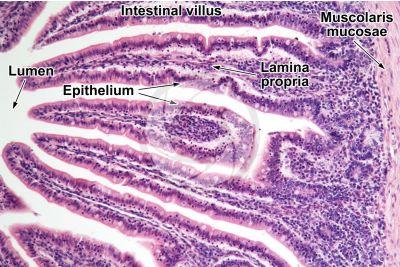 Rat. Small intestine. Transverse section. 125X