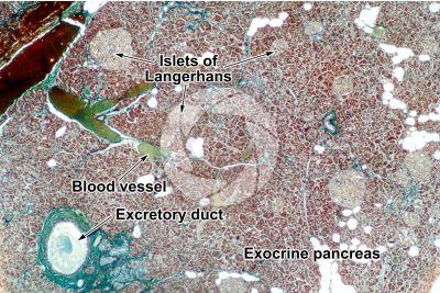 Man. Pancreas. Transverse section. 32X