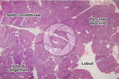 Uomo. Pancreas. Sezione trasversale. 15X