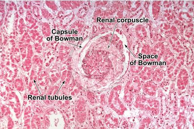 Man. Kidney. Transverse section. 125X