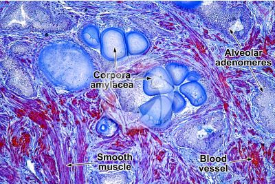 Pig. Prostate. Transverse section. 125X