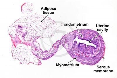 Rat. Uterus. Transverse section. 32X
