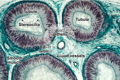 Man. Testicle. Epididymis. Transverse section. 125X