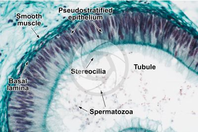 Man. Testicle. Epididymis. Transverse section. 250X