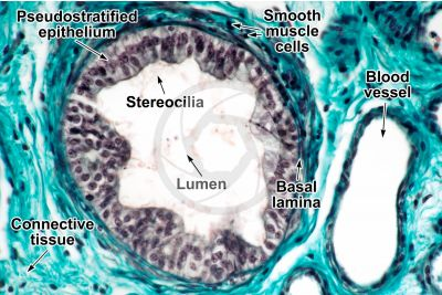 Man. Testicle. Vas deferens. Transverse section. 250X