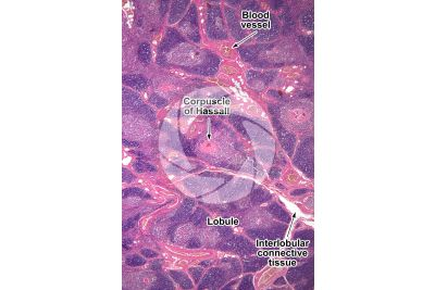 Man. Thymus. Transverse section. 32X