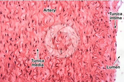 Mammal. Artery. Transverse section. 250X