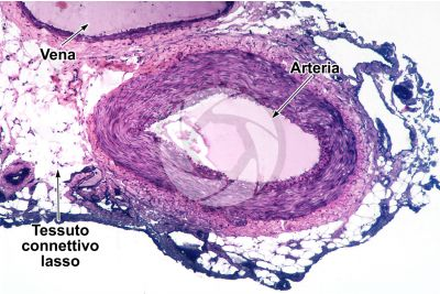 Mammifero. Arteria. Sezione trasversale. 64X