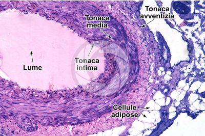Mammifero. Arteria. Sezione trasversale. 125X