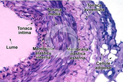 Mammifero. Arteria. Sezione trasversale. 250X