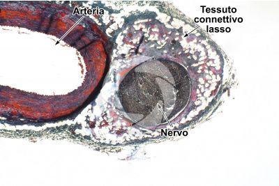 Mammifero. Arteria e nervo. Sezione trasversale. 32X