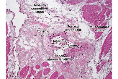 Mammifero. Arteriola. Sezione trasversale. 250X
