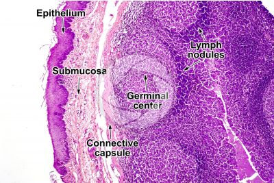 Man. Palatine tonsil. Transverse section. 64X