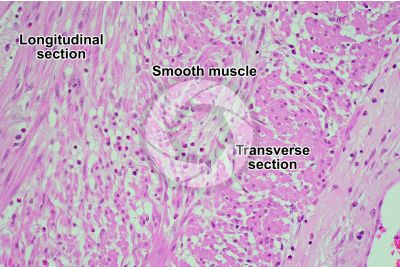 Mammal. Smooth muscle. Transverse section. 125X
