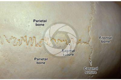 Mammal. Spongy osseous tissue. Skull. Top view