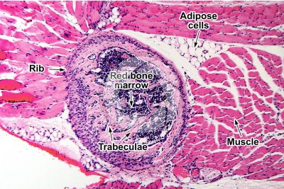 Rat. Rib. Transverse section. 125X