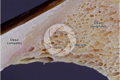 Mammifero. Tessuto osseo spugnoso. Femore. Sezione longitudinale. 7X
