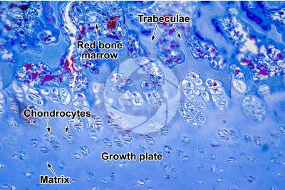 Mammal. Growth plate. Longitudinal section. 250X