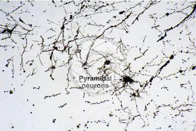 Mammal. Cerebral cortex. Neuron. Silver stain. 250X