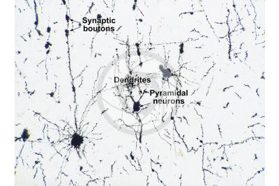 Mammal. Cerebral cortex. Neuron. Silver stain. 125X