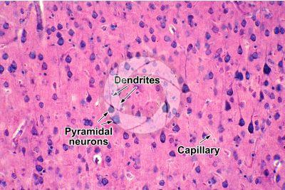 Mammal. Cerebral cortex. Neuron. 250X