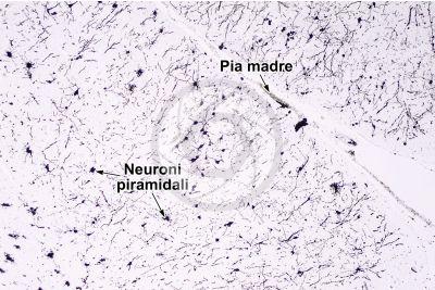 Mammifero. Corteccia cerebrale. Neurone. Impregnazione argentica. 64X