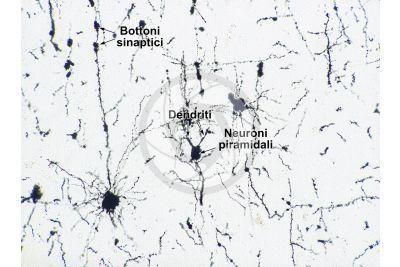 Mammifero. Corteccia cerebrale. Neurone. Impregnazione argentica. 125X