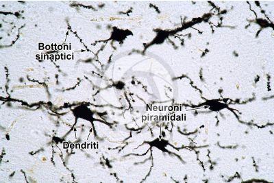 Mammifero. Corteccia cerebrale. Neurone. Impregnazione argentica. 250X