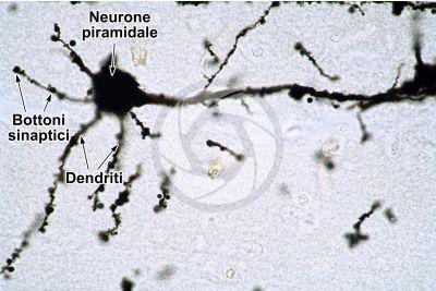 Mammifero. Corteccia cerebrale. Neurone. Impregnazione argentica. 500X