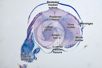 Mammal. Spinal cord and spinal ganglion. Transverse section. 5X
