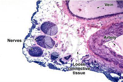 Mammal. Nerve. Transverse section. 64X