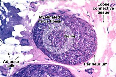 Mammal. Nerve. Transverse section. 250X