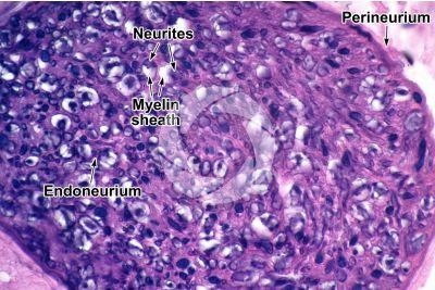 Mammal. Nerve. Transverse section. 500X