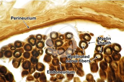 Mammal. Nerve. Osmium tetroxide stain. Transverse section. 125X