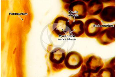 Mammal. Nerve. Osmium tetroxide stain. Transverse section. 250X