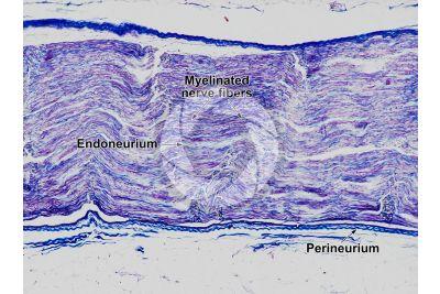 Mammal. Nerve. Longitudinal section. 125X