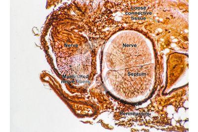 Mammal. Nerve. Transverse section. 50X
