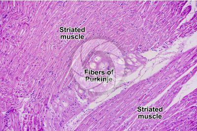 Mammal. Heart. Fiber of Purkinje. Transverse section. 125X
