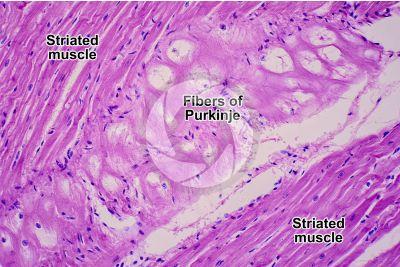 Mammal. Heart. Fiber of Purkinje. Transverse section. 250X