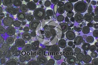 Oolitic Limestone. Thin section in cross polarized light with lambda filter. 32X